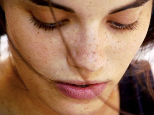 Dark-Spots-on-Your-Face-During-Pregnancy